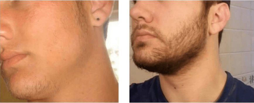 How to grow your beard with Minoxidil