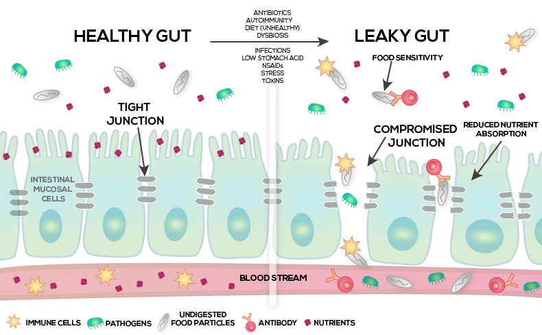 leaky gut leads to low testosterone e1567458525248 A Healthy Gut and Probiotics Boost Testosterone Production